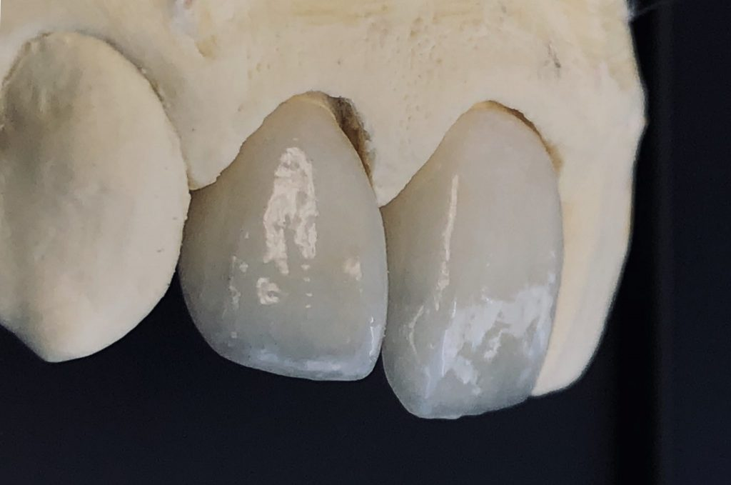 Read more on Emax Crowns vs. Zirconia Crowns: The Beauty and the Beast