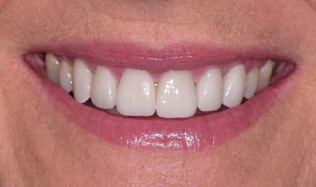 Read more on Create a More Youthful Smile with Porcelain Veneers